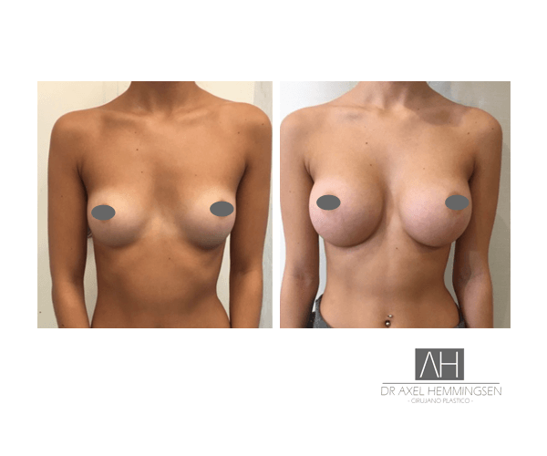 Cirugía de aumento mamario en Buenos Aires 001