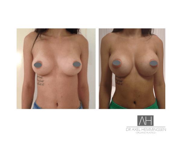 Cirugía de aumento mamario en Buenos Aires 002