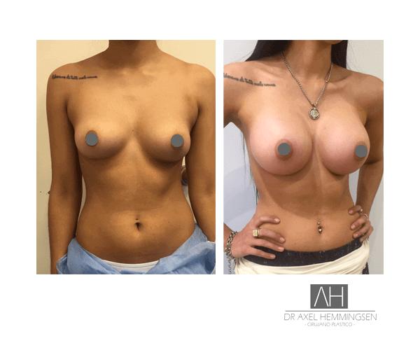 Cirugía de aumento mamario en Buenos Aires 003