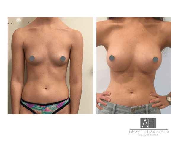 Cirugía de aumento mamario en Buenos Aires 004