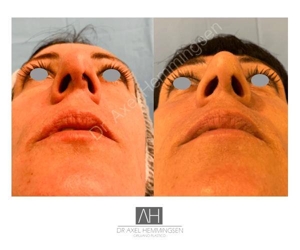 Rinoplastia secundaria 005