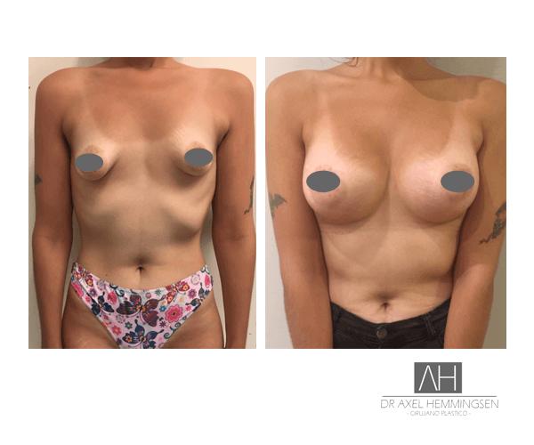 Aumento de mamas 03