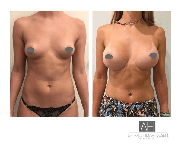 Aumento de mamas 04
