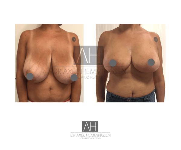 Mamoplastia de Reducción 03