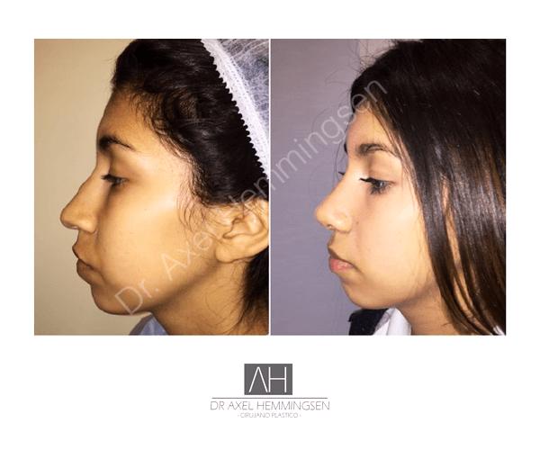 Cirugía de nariz 01