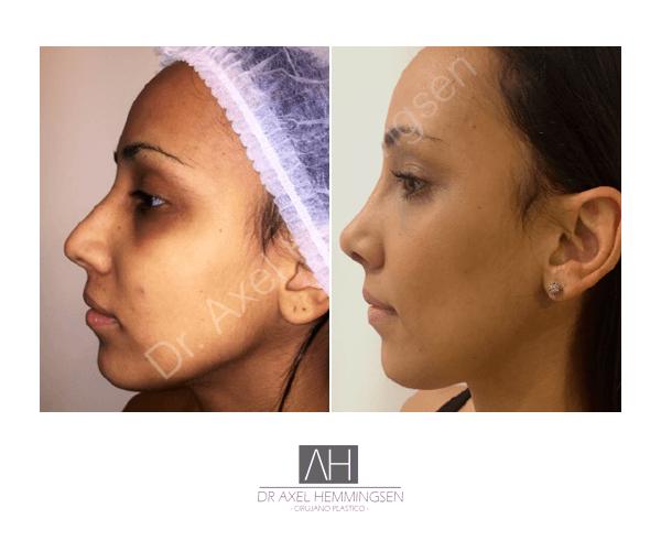 Cirugía de nariz 02
