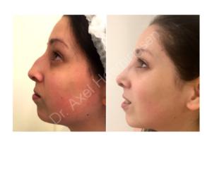 cirugia de nariz buenos aires argentina 003