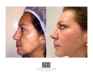cirugia de nariz buenos aires argentina 004