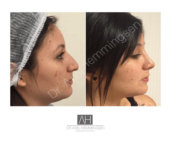 Cirugía de nariz 05