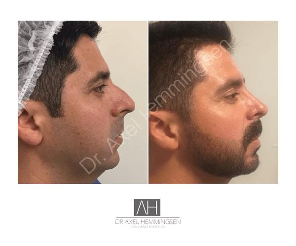 Cirugía de nariz 06