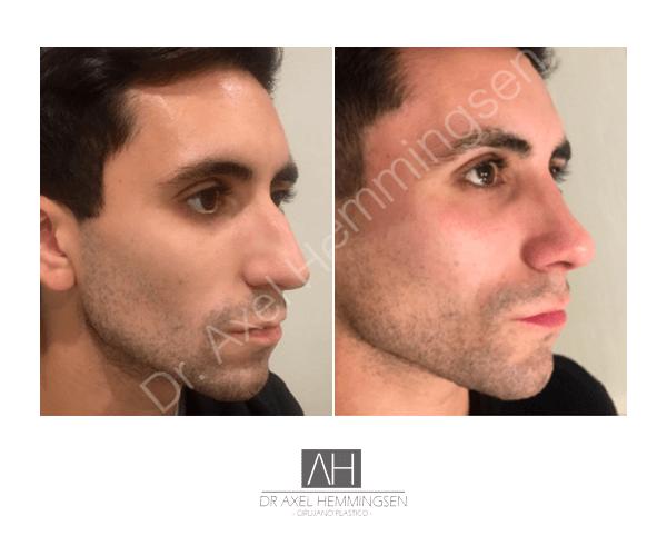Cirugía de nariz 07