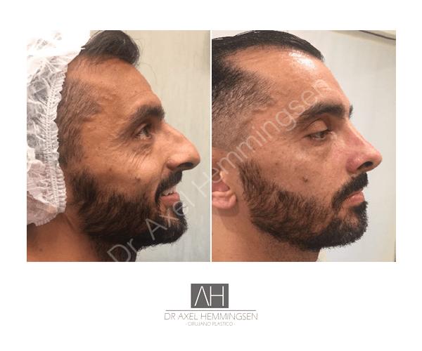 Cirugía de nariz 08