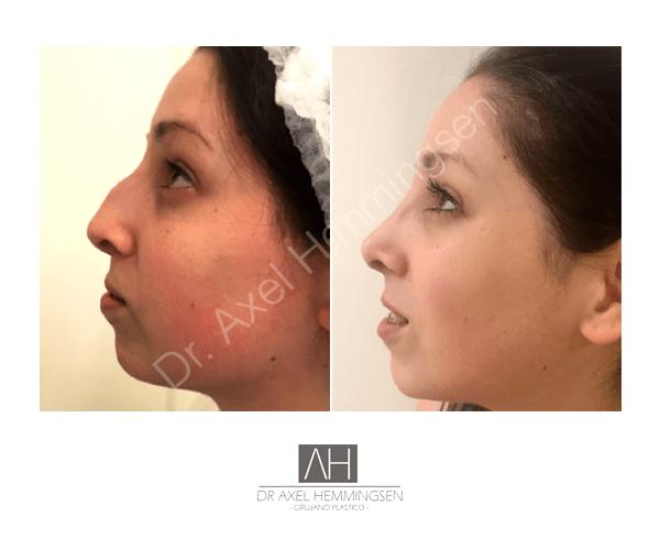 Cirugía de nariz 03